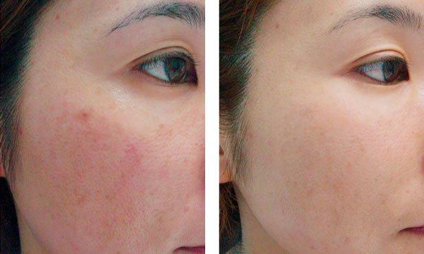 laser sun spot removal